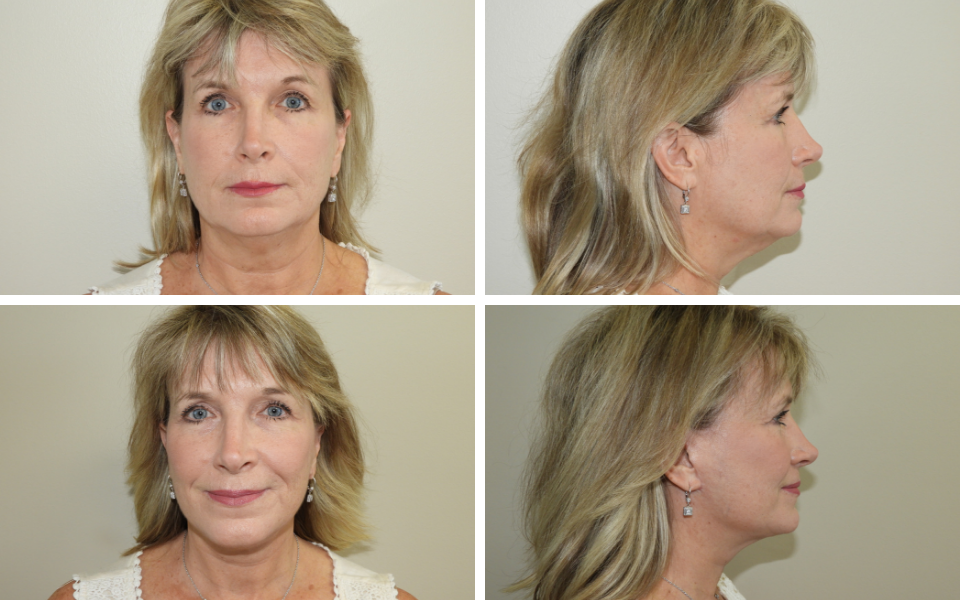 Tulsa facelift doctor
