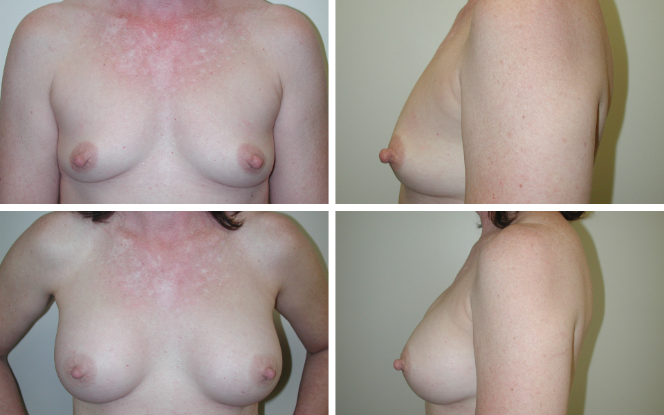 tulsa breast augmentation doctor