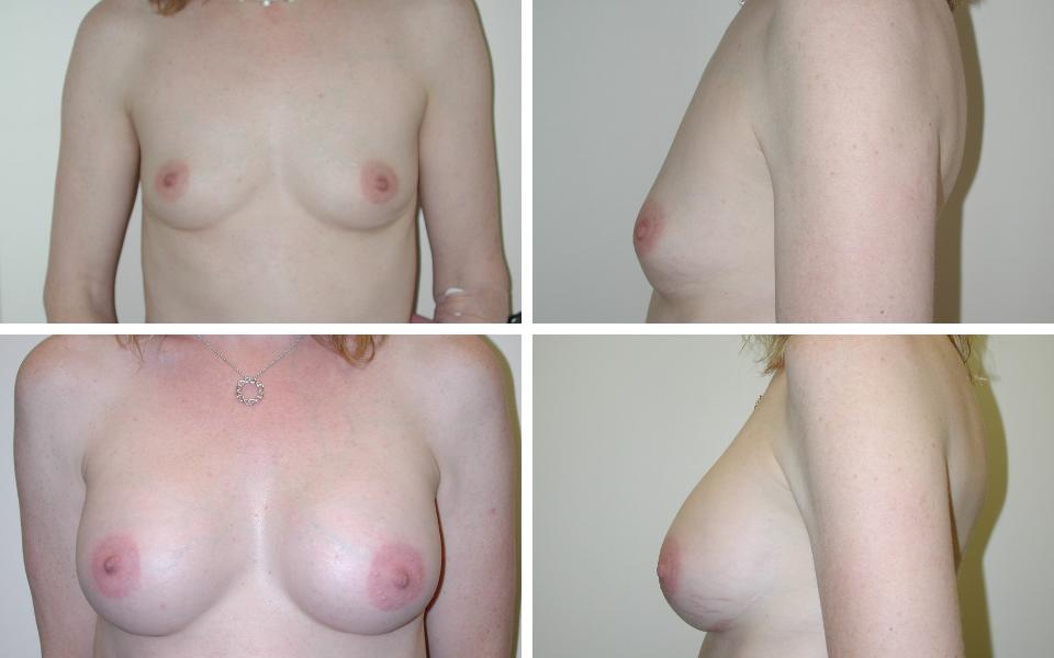 tulsa breast augmentation