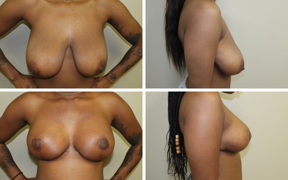tulsa breast reduction