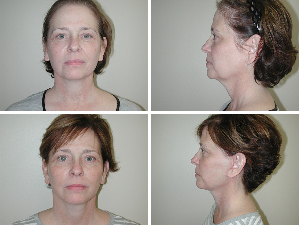 Facelift | Plastic Surgery of Tulsa