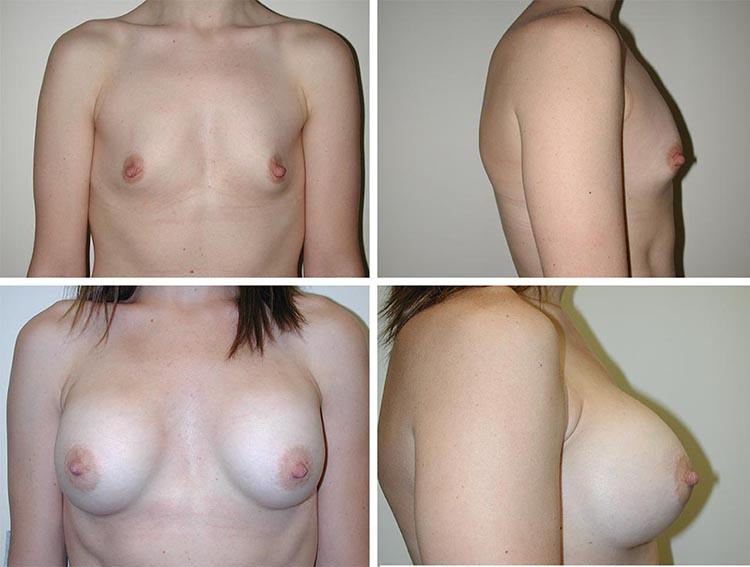 Breast Augmentation | Plastic Surgery of Tulsa