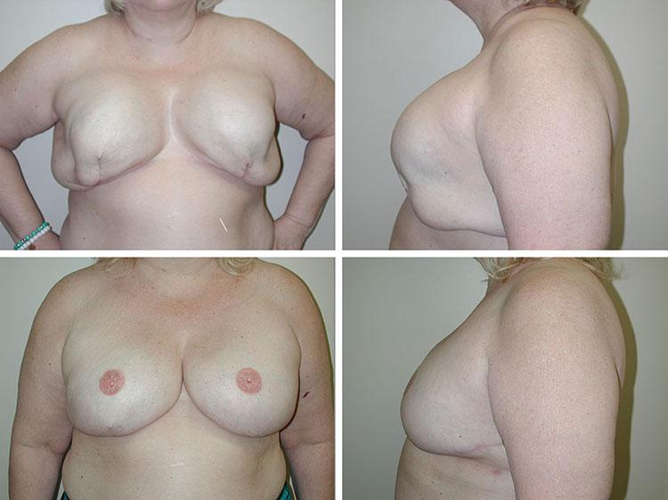 Breast Reconstruction | Plastic Surgery of Tulsa