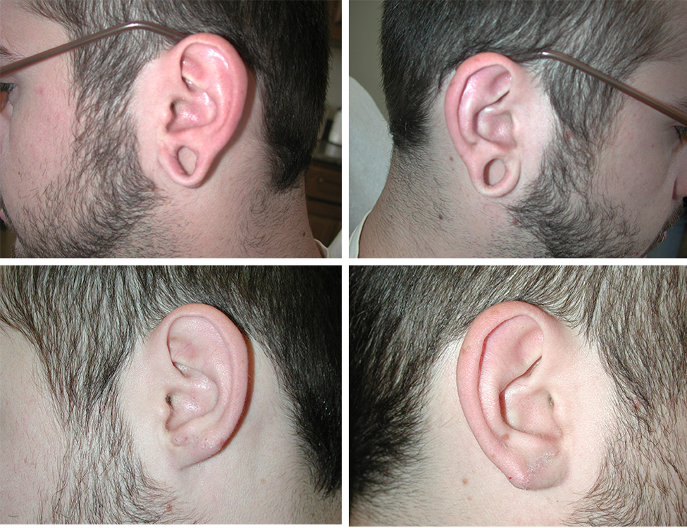 Gauges | Plastic Surgery of Tulsa