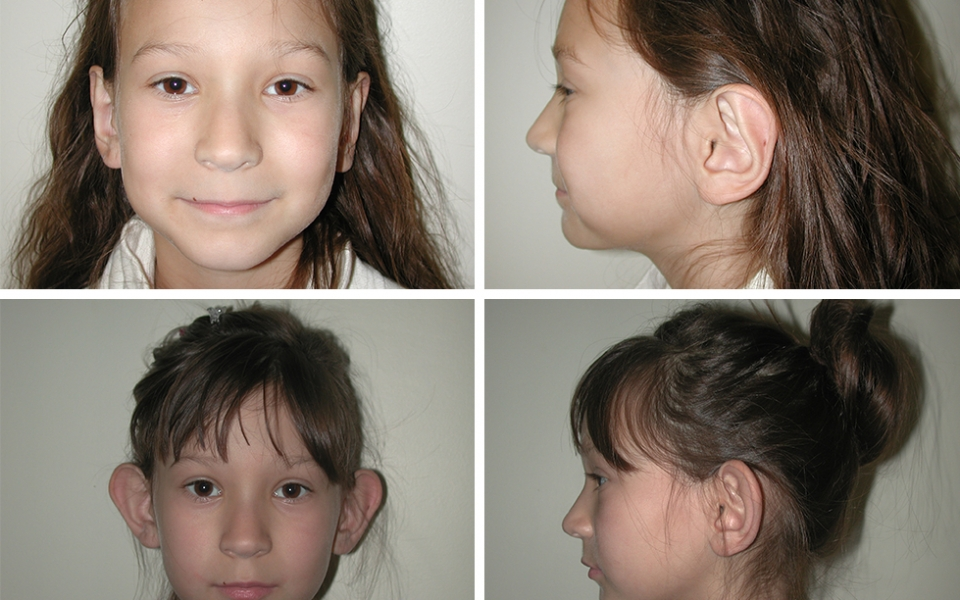 Otoplasty | Ear Pinning | Plastic Surgery of Tulsa