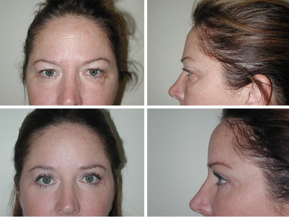 Browlift | Plastic Surgery of Tulsa
