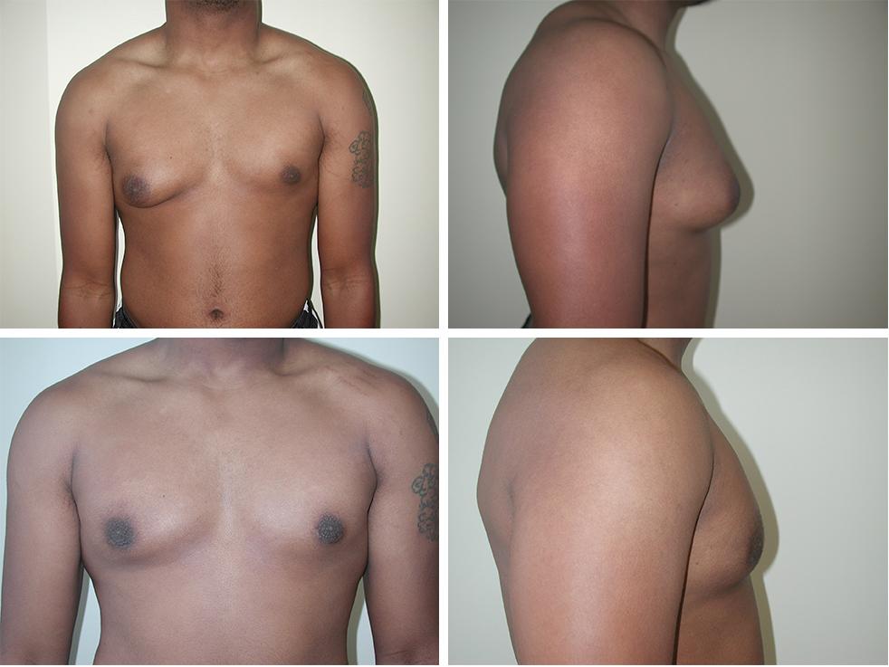 Gynecomastia | Plastic Surgery of Tulsa