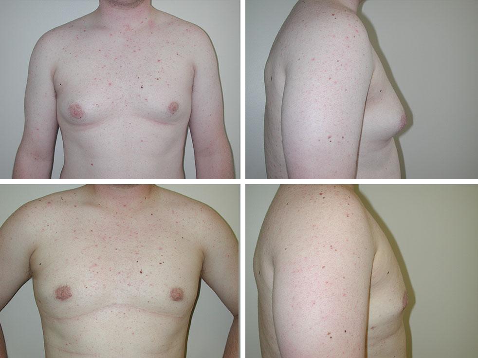 Gynecomastia   Plastic Surgery of Tulsa
