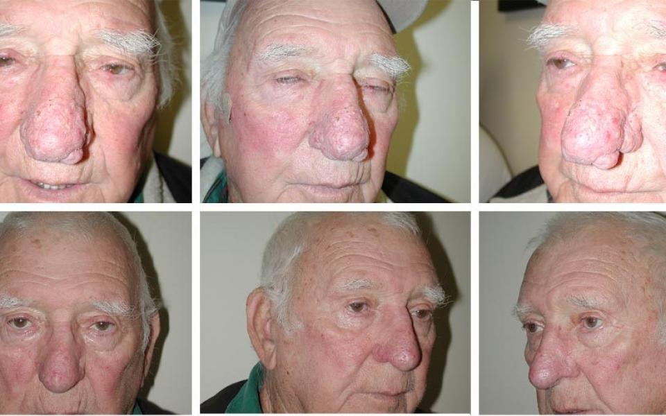 Nasal Contouring | Plastic Surgery of Tulsa