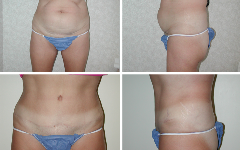 Abdominoplasty | Plastic Surgery of Tulsa