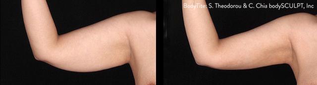 tulsa bodytite arms